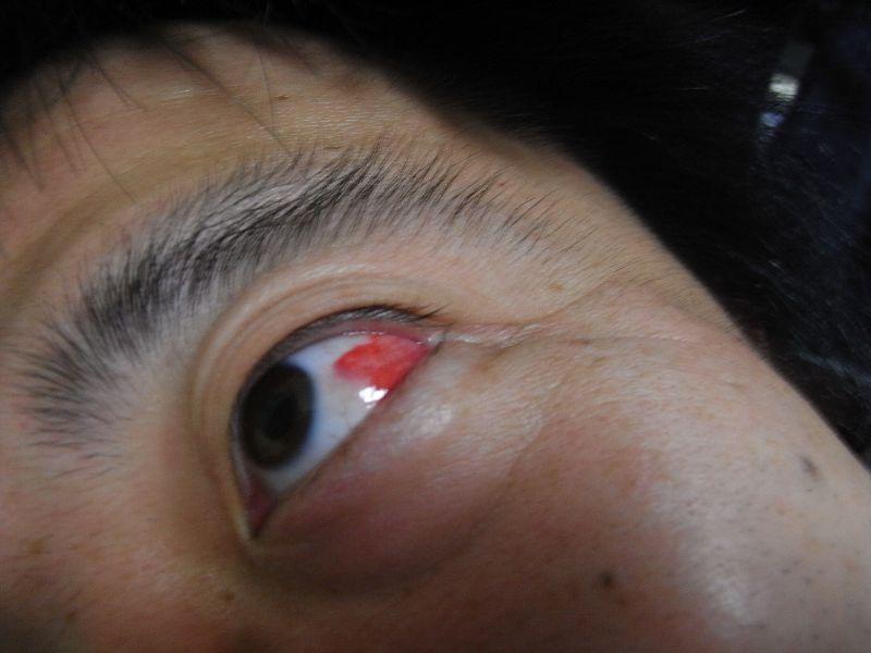 目が、目がぁ~